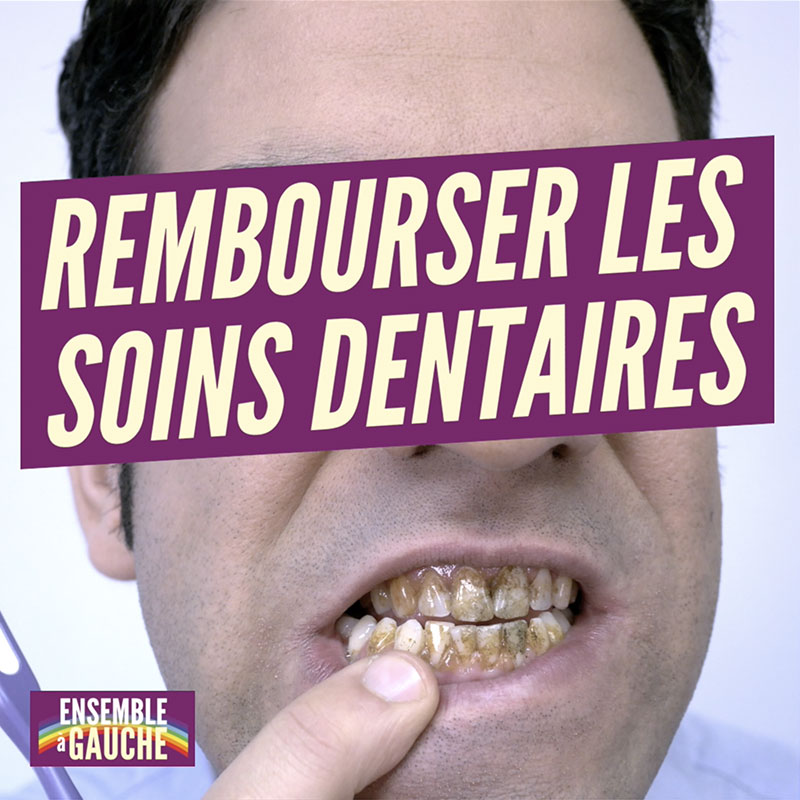 "Man showing his dirty teeth with an overlay text saying: ""Rembourser les soins dentaires"""